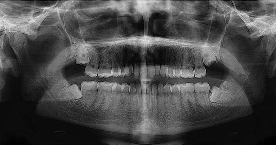 periodontitis-liquido