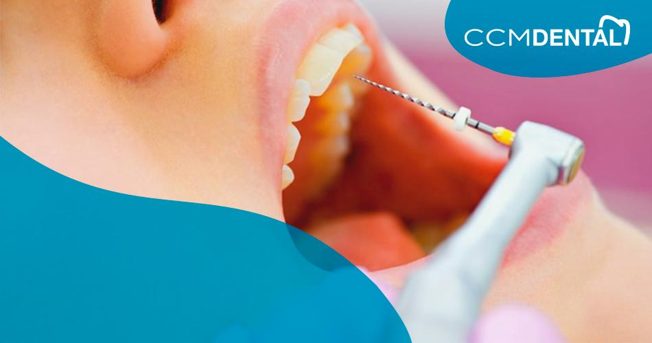 endodoncia en Santander y Cantabria, tratamiento por seguro y privado para endodoncia